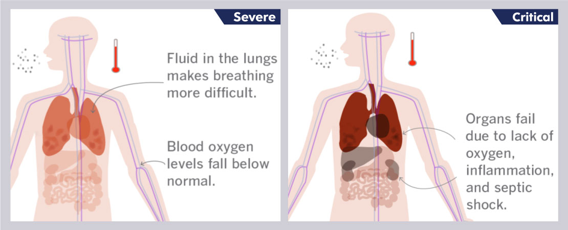 The virus affects the human lungs leaving them incapable of performing the gaseous transport at its maximum potential.